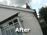 A fascia after the Aqua Clean treatment